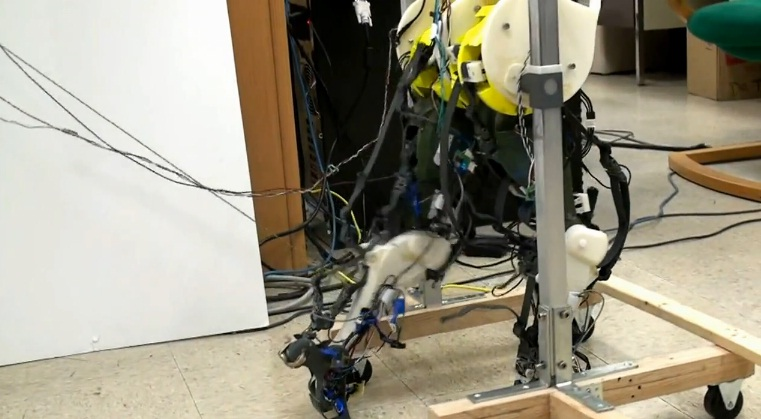 Robot Legs To Teach Patients With Severe Spinal Injuries Walk Again